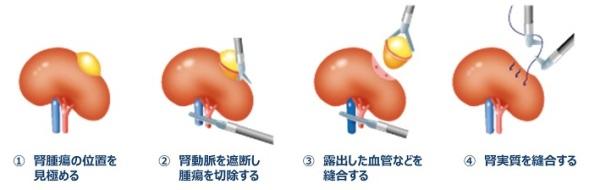 腎部分切除イラスト