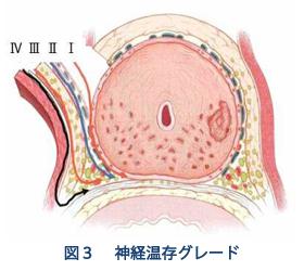 前立腺がん 2