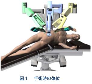手術時の体位(図1)