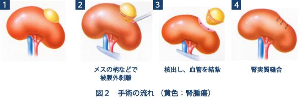 手術の流れ 黄色:腎腫瘍 (図2)。