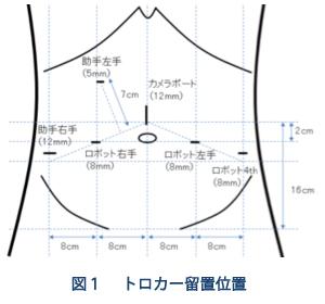 トロカーと言われる筒を計6本下腹部に挿入(図1)。