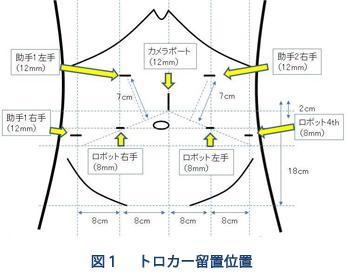 トロカー留置位置(図1)