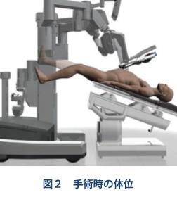 手術時の体位(図2)