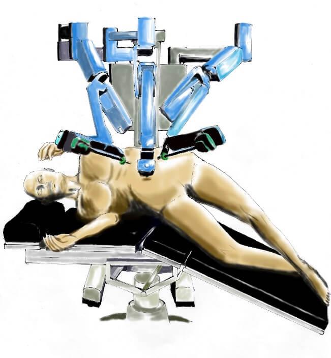 手術時の体位(左側の場合)
