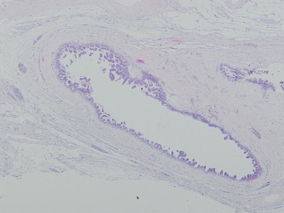 0.2㎜の膵臓がん発見