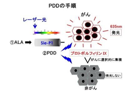 PDDの手順