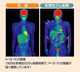 PET-CT画像②
