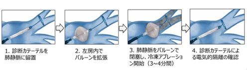 アブレーション図3