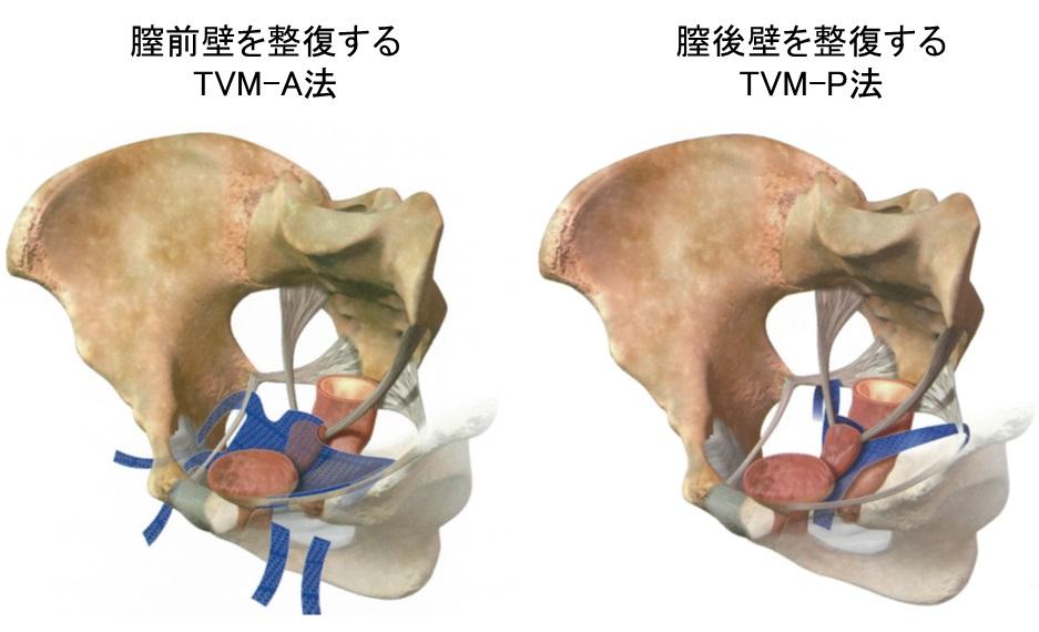 骨盤臓器脱_TVM手術