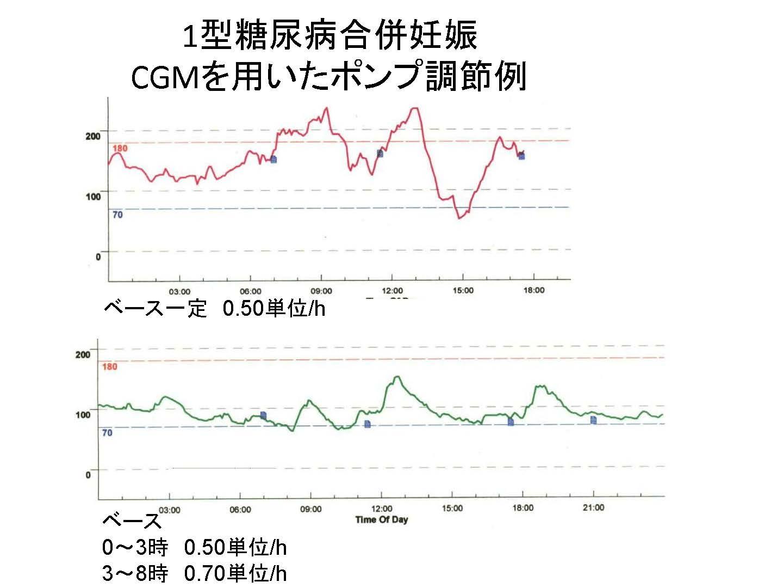 1型糖尿病合併妊娠CGM
